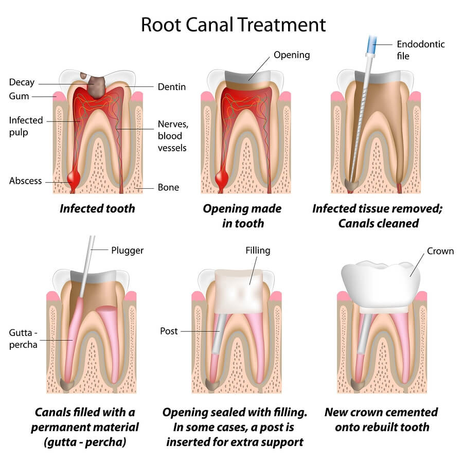 NHS root canal treatment Cheadle Hulme, Stockport, SK8 | Root canal cost