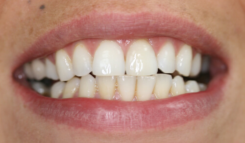 A close up of a Cheshire based Freedom Dental patient's teeth after Tooth Whitening