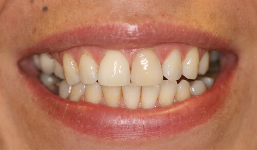 A close up of a Cheshire based Freedom Dental patient's teeth before Tooth Whitening