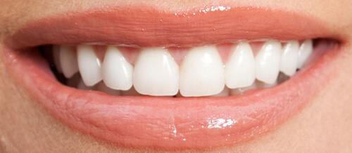Freedom Dental Veneers After